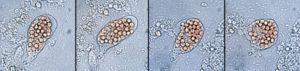 顕微鏡下での赤痢アメーバの運動