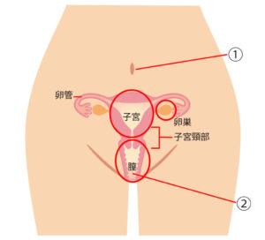 クラミジア症状解説(女性)
