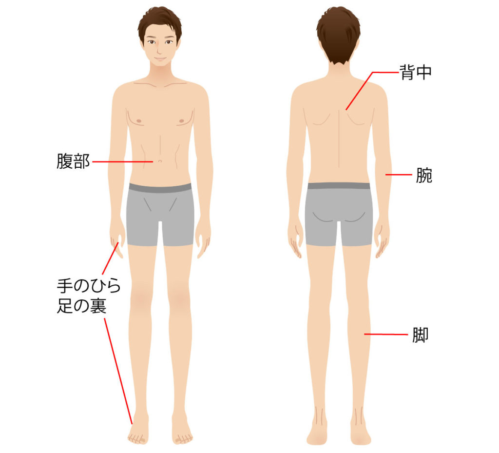 梅毒Body