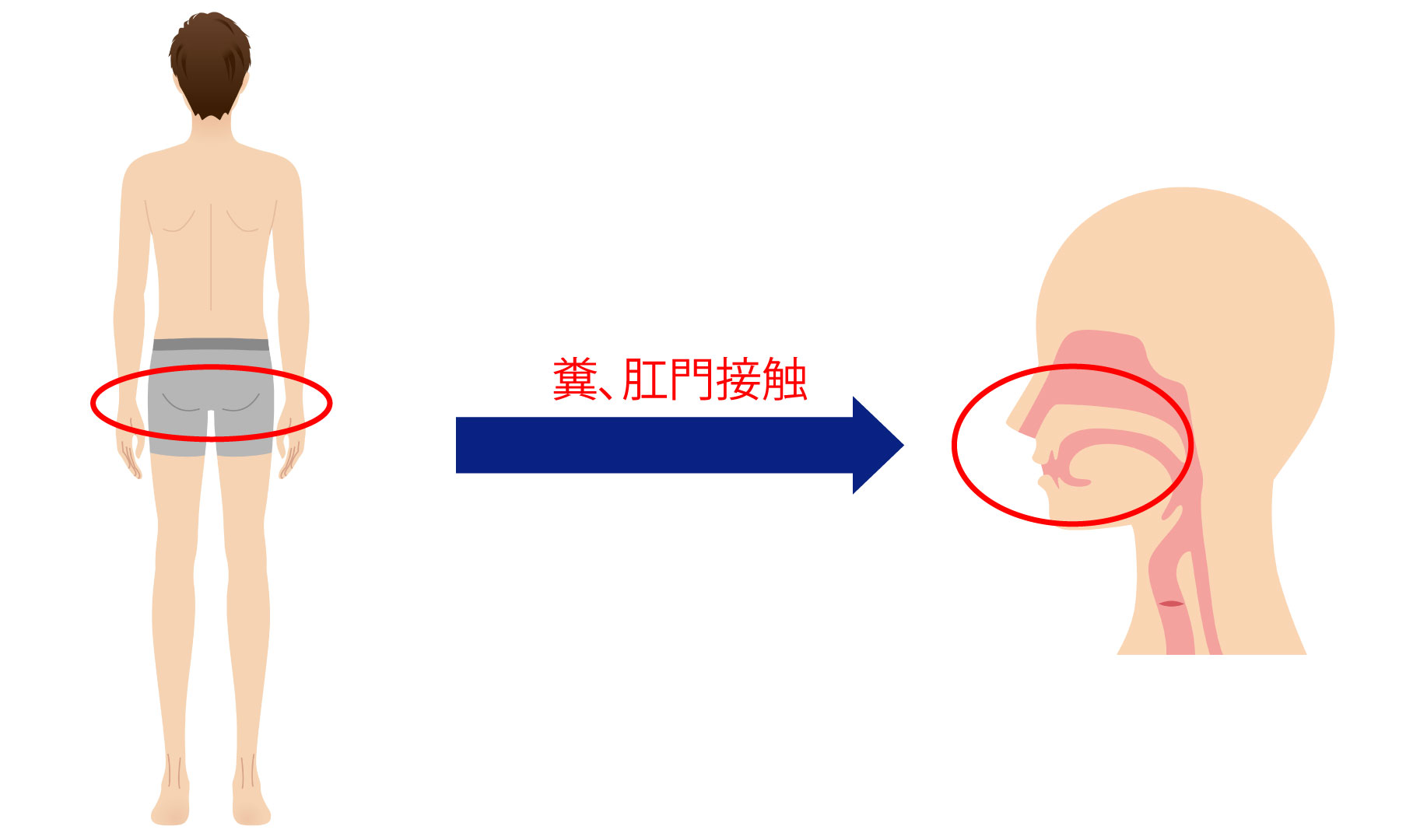 肝炎(PC)