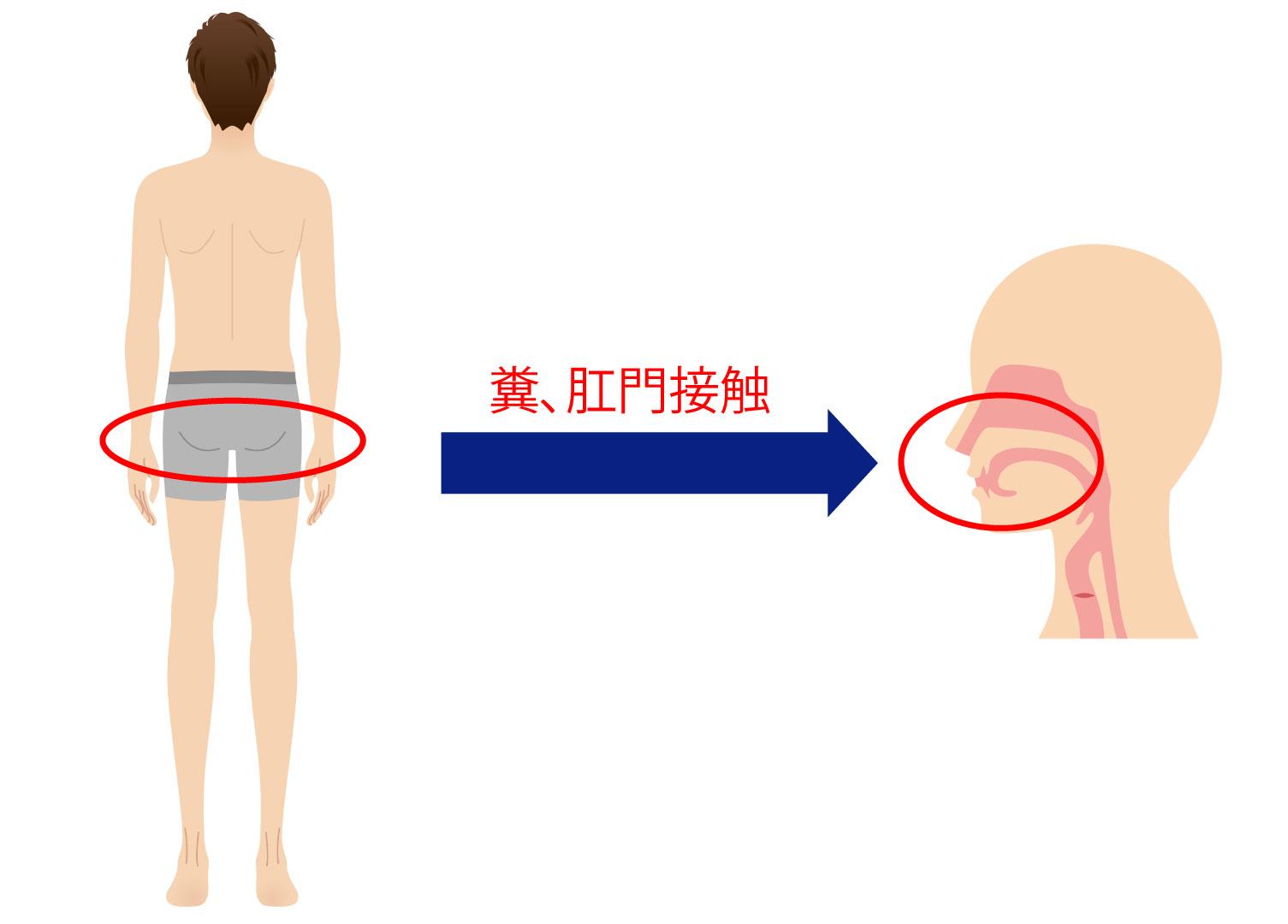 肝炎(SP)