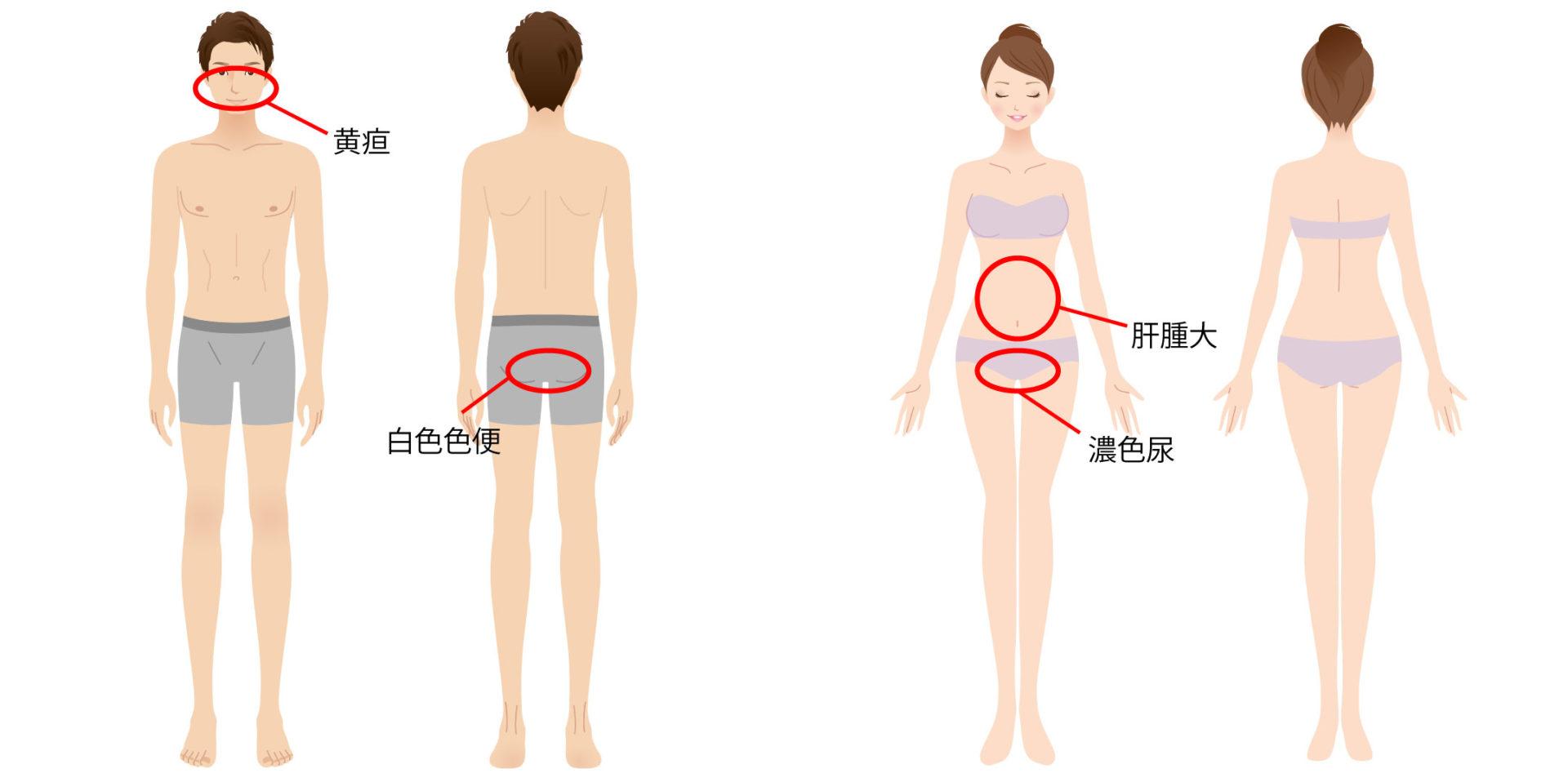 肝炎(まとめ)