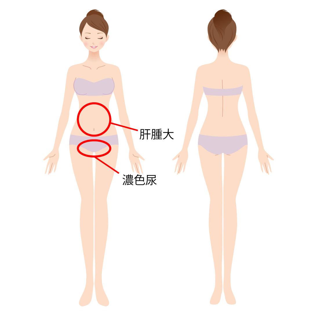 肝炎(女性)