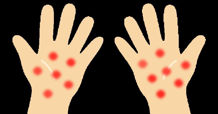 うつる 梅毒 キス 【医師監修】梅毒の感染経路は? キスや温泉でうつることもあるの?